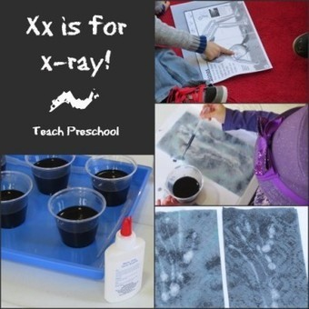 Xx is for x-ray! | Teach Preschool | Scoop.it