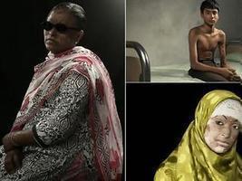 Συγκλονιστικό: Οι άνθρωποι που γλύτωσαν από επιθέσεις με οξύ [photos] | Περί πολιτισμού... | Scoop.it