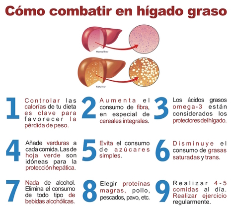 Causas de un hígado agrandado | Apasionadas por la salud y lo natural | Scoop.it