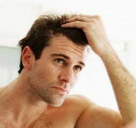 Study On Hair Loss Stages in today's busy life « Isabel_Marshal's Blog | nestpillmart | Scoop.it