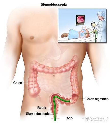 Cáncer de colon: Tratamiento (PDQ®) - National Cancer Institute | Biologia humana | Scoop.it