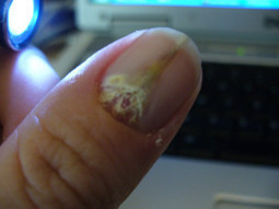 Why Do My Nails Peel and Split   Nails Journal   Home Remedies for Fingernail Fungus   Scoop.it
