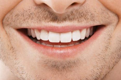 Impianti dentali per denti mancanti dalla nascita | Studio Degidi Bologna | Blog Implantologia Dentale Degidi | Scoop.it
