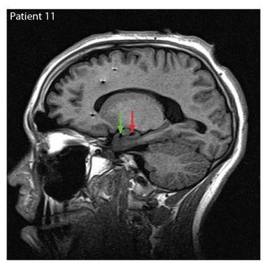The neural processes of evaluating the emotions of others   Social Neuroscience Advances   Scoop.it