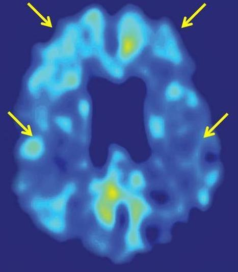 UCLA brain-imaging tool and stroke risk test help identify cognitive decline early | Psychology Professionals | Scoop.it
