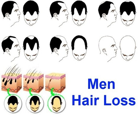 Hair Loss Treatment For Men | hair loss solutions | Scoop.it