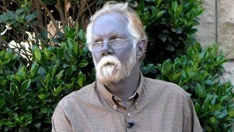 Internet Sensation 'Papa Smurf' Dies; Other Blue People Live On   Strange Deaths   Scoop.it