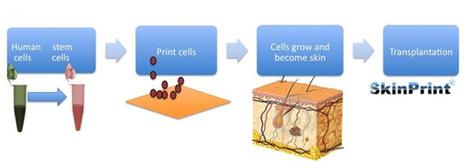 SkinPrint: 3D geprinte huid oplossing voor brandwondenslachtoffers | 3D and 4D PRINTING | Scoop.it
