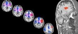 Brain's 'sweet spot' for love found in neurological patient   Social Neuroscience Advances   Scoop.it