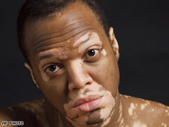 What is vitiligo and how to treat it?   Health Is Wealth   Scoop.it
