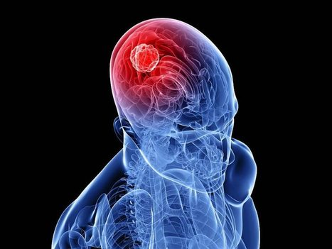 Habits That Causes Brain Cancer. Read More to Know | Health | Scoop.it
