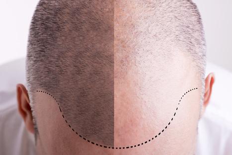 Haartransplantation Vorher / Nachher | Medizin - Gesundheit - Beauty | Scoop.it