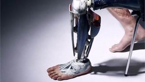 Prosthetics with a difference | BioPlug | Scoop.it