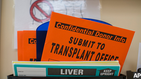 Increasing Transplant Organ Supply Through Uncontrolled Donation After Circulatory Death | Organ Donation & Transplant Matters Resources | Scoop.it