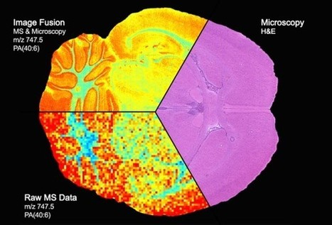 Imaging break-through: Fusion of microscopy and mass spectrometry produces detailed map of protein distribution | Amazing Science | Scoop.it