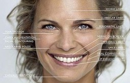 Buy Juvederm To Treat Facial Wrinkles   Cosmetic products   Scoop.it