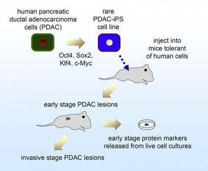 Pluripotent cells from pancreatic cancer cells first human model of cancer's progression | Longevity science | Scoop.it
