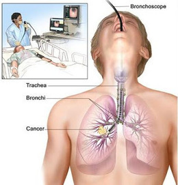 Let's Talk About Lung Cancer: About Lung Cancer Treatment | About Lung Cancer | Scoop.it