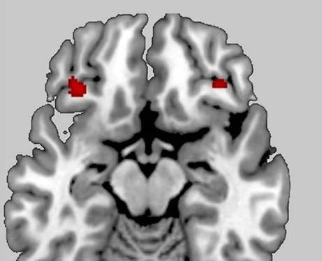 Ribelli si nasce - Biotech - Scienza&Tecnica - ANSA.it | Neuroscienze | Scoop.it