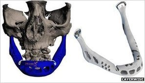 Transplant jaw made by 3D printer claimed as first | Technoculture | Scoop.it