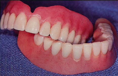 Complete Denture Treatment | Fixed Teeth Replacement Treatments in New Delhi | Dental Clinic in New Delhi | Scoop.it
