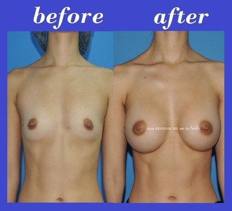 Bangkok Aesthetic Surgery Center Before And After Photos: Trans-axillary Incision Breast Augmentation Before And After Photos | Best Cosmetic Surgery Clinic In Thailand | Scoop.it