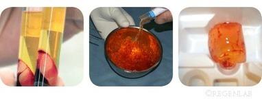 A-BMC / Autologous Bone Marrow Concentrate  from regenlab - CH | Dental Implant and Bone Regeneration | Scoop.it