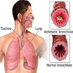 Patología del Aparato Respiratorio - Alianza Superior | Patología del Aparato Respiratorio | Scoop.it