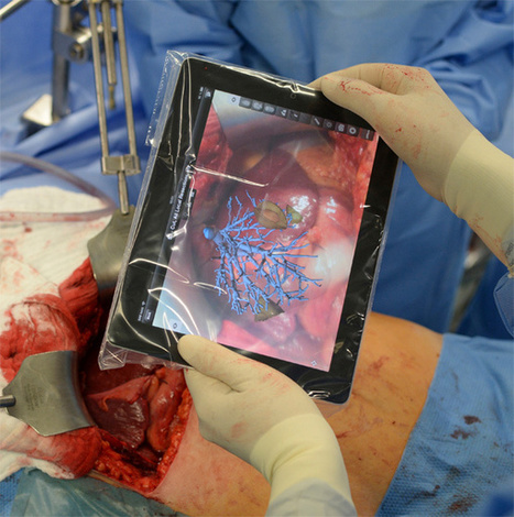Augmented Reality iPad App Guides Surgeons During Tumor Removal | The Rise of the Algorithmic Medium | Scoop.it