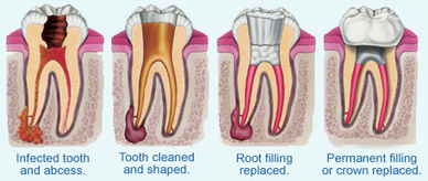 Root Canal Treatment | Dental Clinic In Delhi | Scoop.it