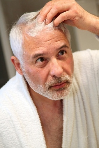 Mexico Hair Transplant Cost: Giving Valuable Results for Hair Loss | BajaHairCenter | Scoop.it