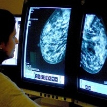 Test for cancer outcomes improved | Breast Cancer News | Scoop.it