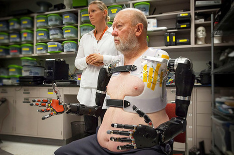 Double amputee controls two robotic arms with his mind | Technologeek | Scoop.it