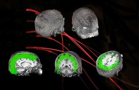 Controlling Brain Waves to Improve Vision   Social Neuroscience Advances   Scoop.it