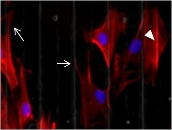 The Effect of Exogenous Zinc Concentration on the Responsiveness of MC3T3-E1 Pre-Osteoblasts to Surface Microtopography: Part I (Migration) | Micropatterns | Scoop.it