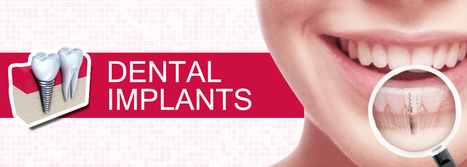 Post-Procedure Care Of Your Dental Implants | BangkokDental | Scoop.it