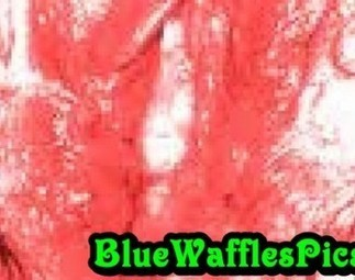 Blue Waffles Disease Pictures | Fashion and Beauty | Scoop.it