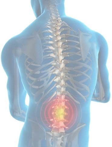 6 Causes of Back Pain No Practitioner Wants to Discuss | Edmonton Chiropractors - Redefined Health | Scoop.it