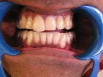 Cosmetic Dentistry Dentist | Porcelain veneers | Best Cosmetic Surgeons in delhi | Scoop.it