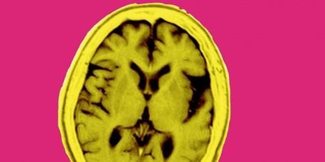 Breakthough: Scientists reverse memory loss in Alzheimer's patients | Lyme Disease Perspectives | Scoop.it