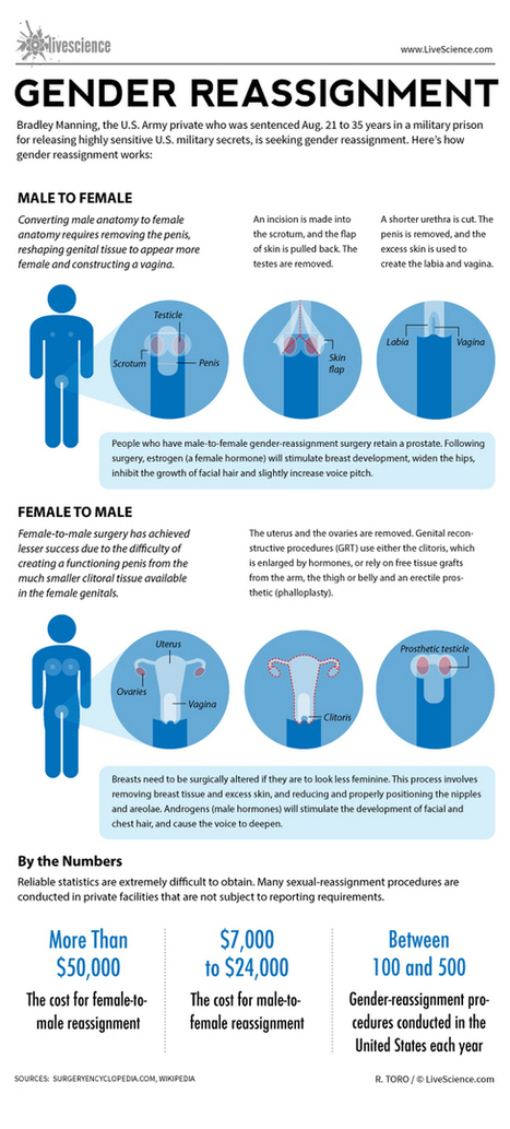 RDFRS: How Gender Reassignment Surgery Works | Edu-idea | Scoop.it
