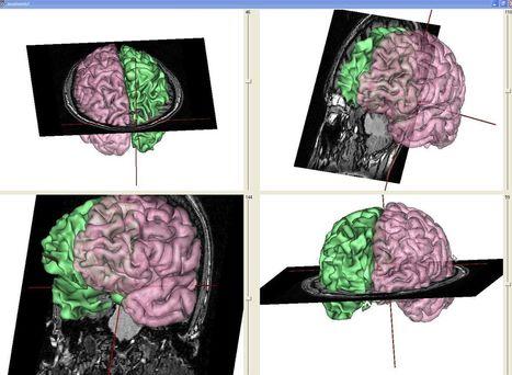 EduAnatomist : logiciel de visualisation d'images cérébrales — Acces   Edu-anatomist   Scoop.it