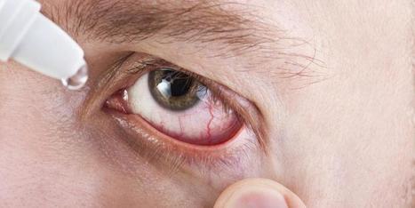 Consejos para prevenir el síndrome de ojo seco | DMedicina | Salud Visual 2.0 | Scoop.it