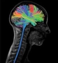 Top 15 Neuroscience Jokes