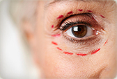 (EN) Commonly Used #Terms in Cosmetic Surgery | webmd.com | 1001 Glossaries, dictionaries, resources | Scoop.it