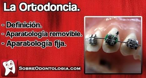 Ortodoncia: Definición y tipos de aparatología   Blog de Odontología   Odontología   Scoop.it