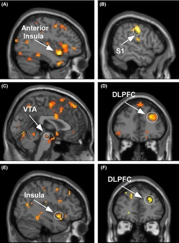 The highly sensitive brain: an fMRI study of sensory processing sensitivity and response to others' emotions - Acevedo - 2014 - Brain and Behavior - Wiley Online Library | neurociencia | Scoop.it