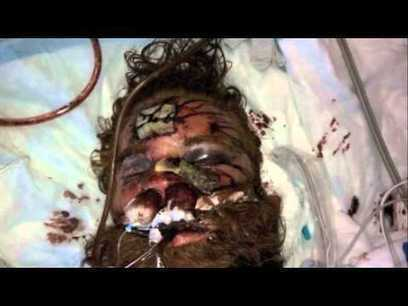 Kelly Thomas brutally beaten by cops from the fullerton police department | Criminal Justice in America | Scoop.it