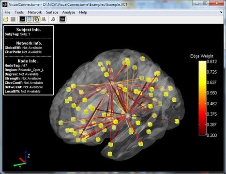 visualconnectome - VisualConnectome - A Matlab Toolbox for Brain Connectivity Analysis and Visualization. - Google Project Hosting | Brain netwroks | Scoop.it