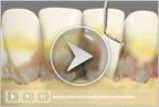 Gum surgery Sun City | Periodontist Surprise | Dentures Surprise | Periodontis | dentistry | Scoop.it
